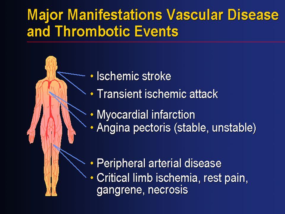 Vascular disease is the result of a generalized process that affects multiple vascular beds, including the cerebral, coronary, and peripheral arteries. Coexistence of vascular disease in multiple beds increases the risk for developing ischemic events such as MI and stroke.[1]
